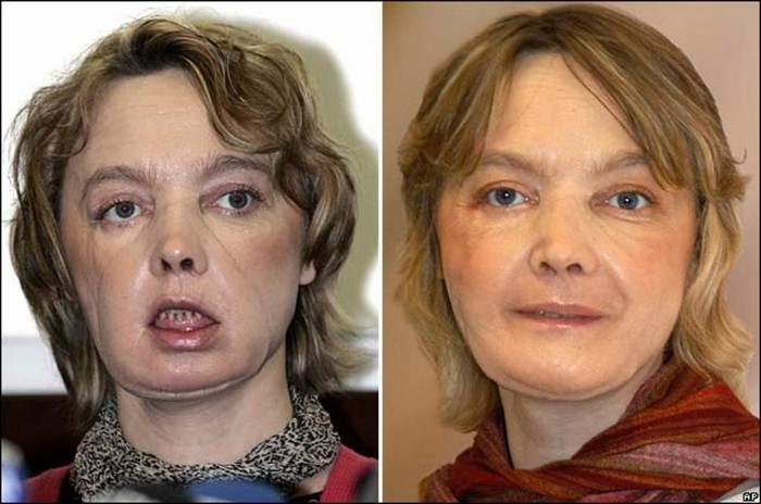 Isabelle Dinoire after receiving the world's first partial face transplant [2005] Source: AP
